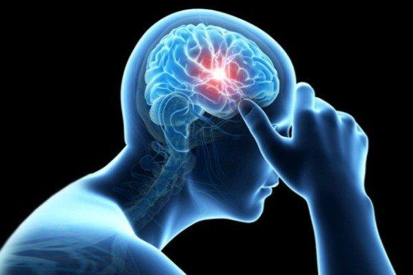 خبر خوش برای بیماران سکته مغزی حاد
