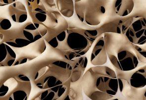 ترمیم بافتهای استخوانی و غضروفی با جوهر زیستی ایرانی
