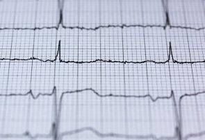 ردیابی افراد با ضربان قلب توسط پنتاگون