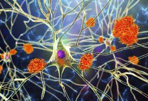 روش جدید درمان آلزایمر