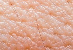 جدا کردن یک مخمر پروبیوتیک از پوست انسان