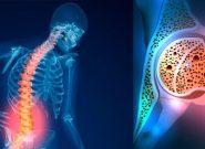 رابطه میان پوکی استخوان و دیابت